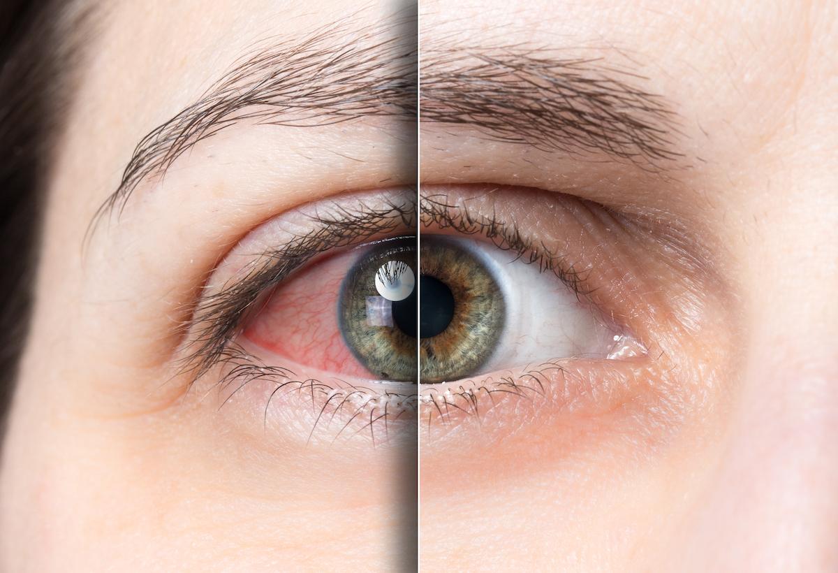 Branch Retinal Vein Occlusion (BRVOQ)