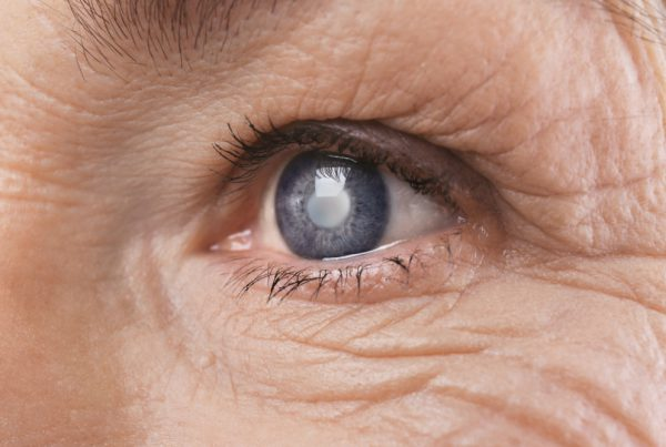 Cataract causes