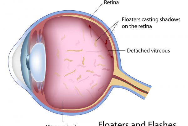 eye floater removal