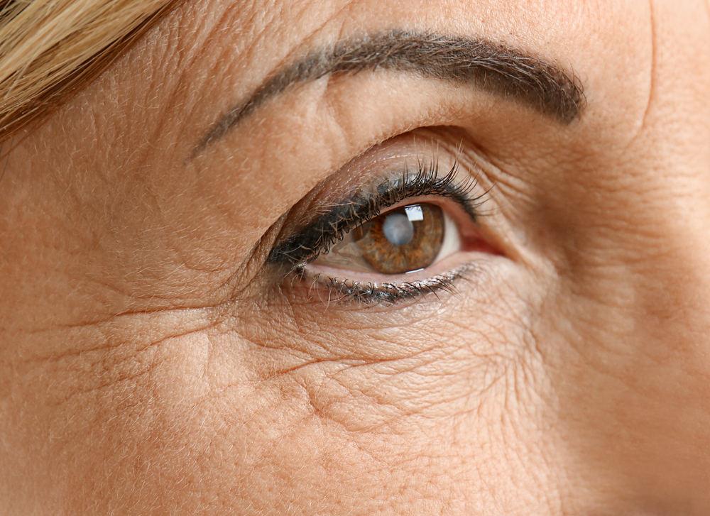What Causes Cataracts In Humans?