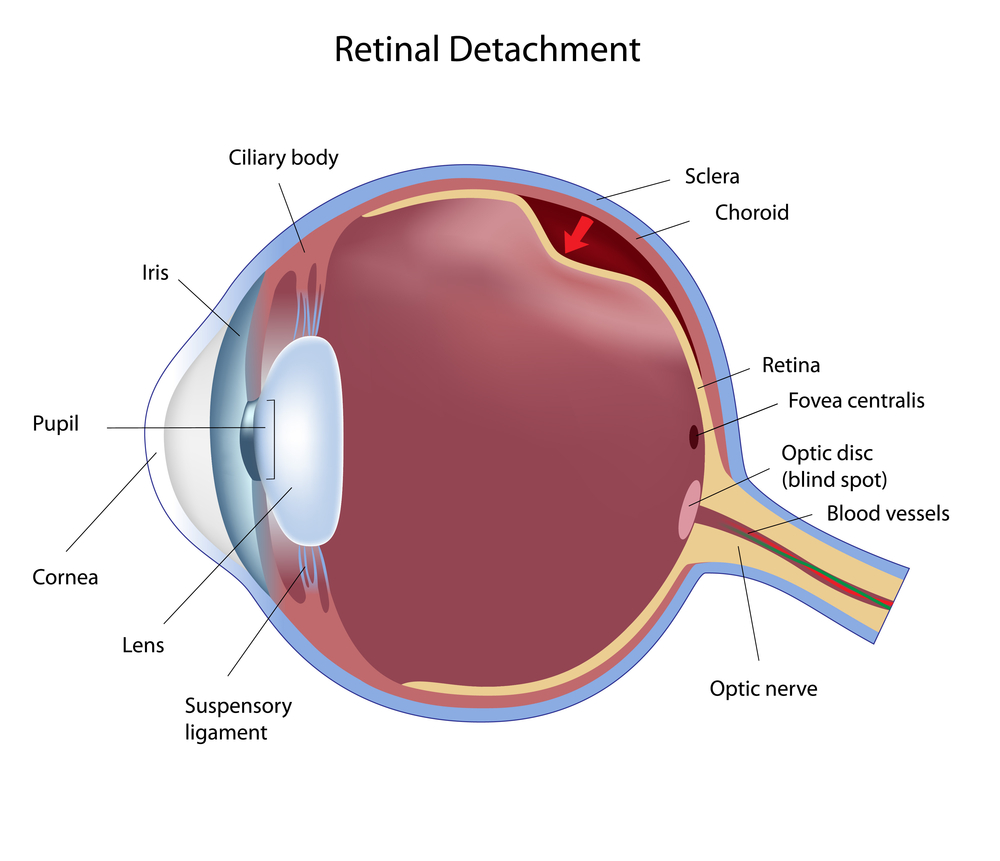 Can Your Retina Detach?