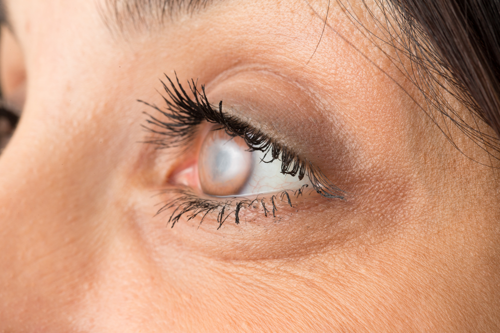 Can Cataracts Be Treated Without Surgery?