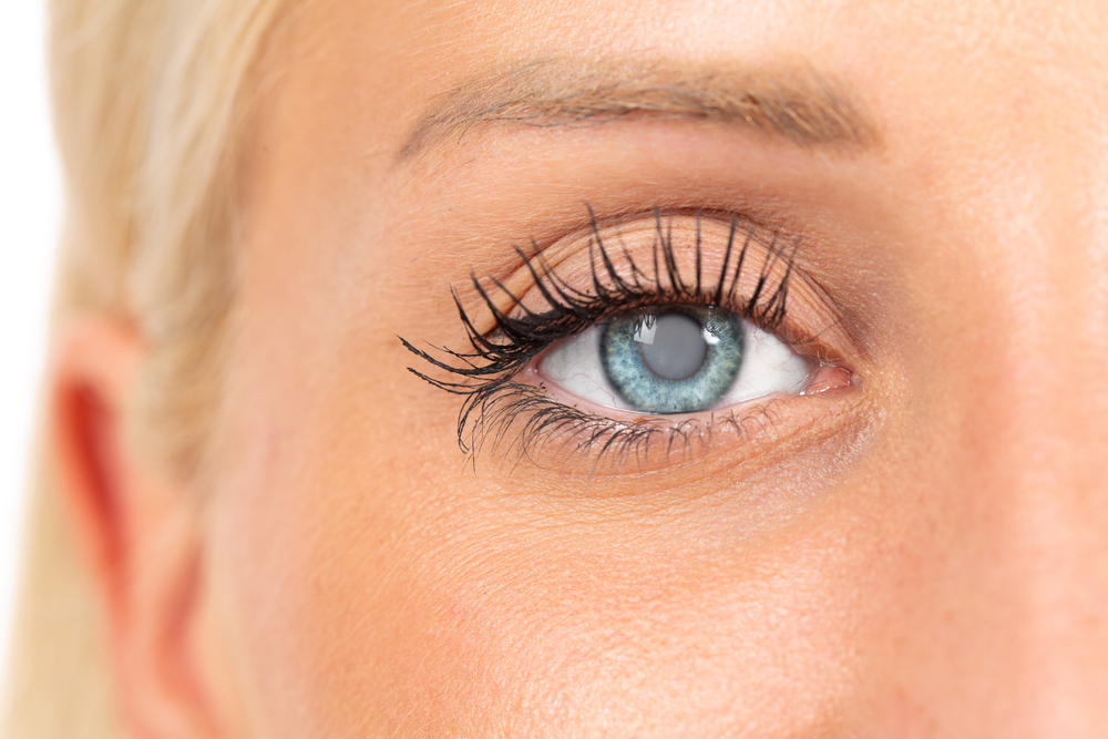 Can Cataracts Grow Back?