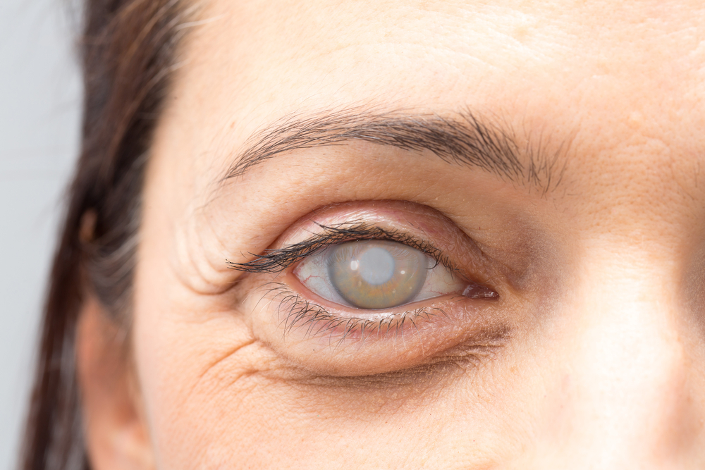 How To Select An Eye Doctor For Cataract Surgery